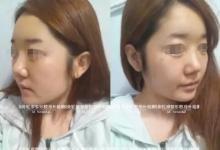 做鼻子再手术+面部不对称整形后 她力破韩国ID不靠谱传言