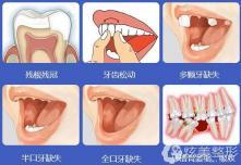 合肥哪家种植牙便宜?靓美二级专科口腔医院费用不高