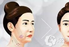 敏感肌肤也能做的韩国艾恩mint+vov埋线提升术价格高吗