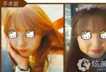 """在韩小姐姐选择菲斯莱茵下颌角缩小术 从此""""扔掉""""国字脸"""