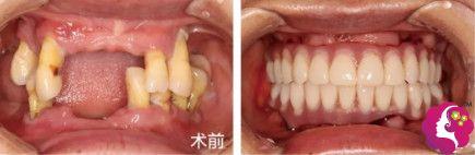 乐莎莎口腔医生高安分做种植牙案例