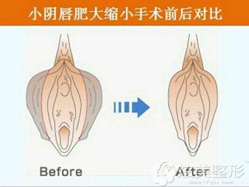 尹虎珠院长做阴唇整形术前后对比