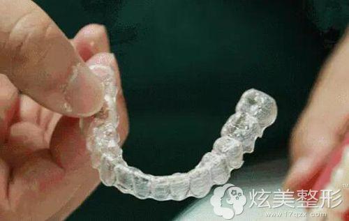 虎牙矫正常用的隐形矫正器