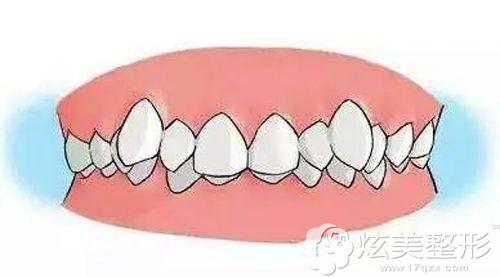 虎牙突出导致的牙齿拥挤简易图