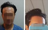 发际线高脸大我都不怕,还怕做毛发移植手术?