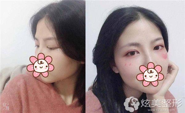 在遵义韩美做切开双眼皮术后半年效果