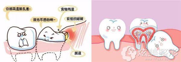 牙齿矫正中需要拔除智齿的几种情况