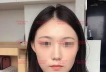 自述在韩国ID做vline+颧骨缩小的轮廓三件套经历