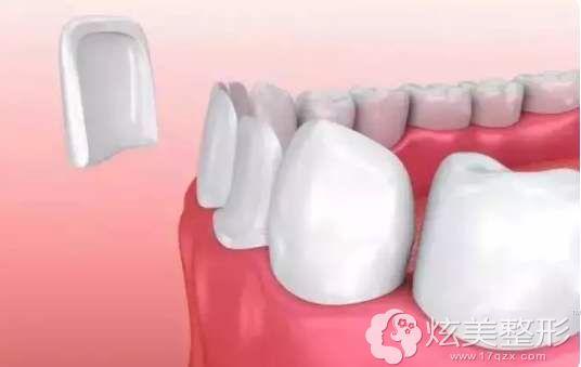 门牙断裂可以选择牙贴面进行修复
