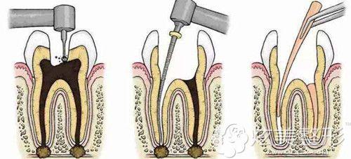 修复门牙前要先拍片看牙神经是否完好
