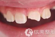 门牙断了想要变美观是做贴面还是补牙