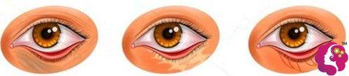 去眼袋手术中去皮去多造成眼皮外翻