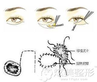 眼皮外翻采用皮瓣移植眼睑成形术修复