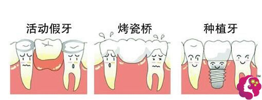 牙齿的修复方式:活动义齿→烤瓷牙→种植牙