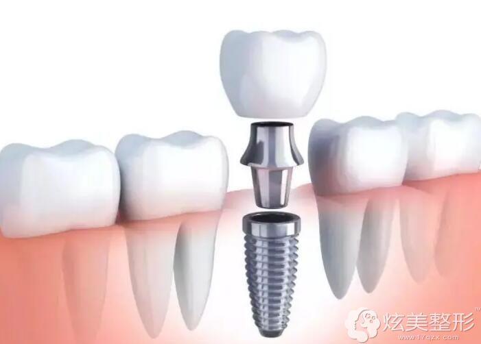 不损伤牙齿的种植牙修复牙缺失