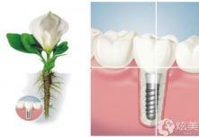 牙医不建议亲属种牙,但其实除了贵种植牙真的没缺点了