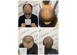 快秃了的你,这里有发际线、鬓角毛发移植改善效果提前看