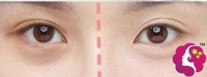 不同方法来祛除黑眼圈