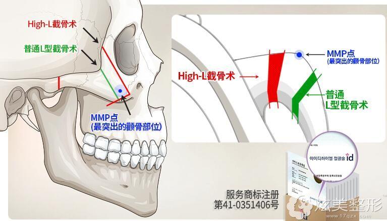 High-L截骨和普通颧骨缩小的区别