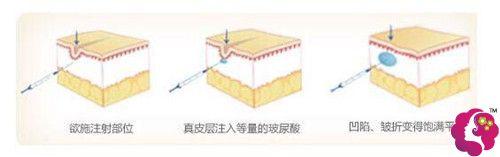 注射玻尿酸去法令纹