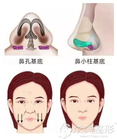 假体垫鼻基底后法令纹消失