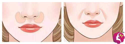 鼻基底凹陷造成的法令纹