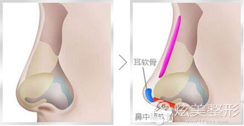 鼻综合修复手术的原理图