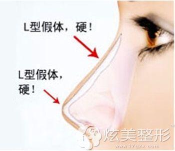 鼻头出现上旋是因为使用了L型假体
