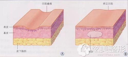 脂肪祛疤手术的步骤示意图