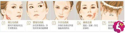 目前常见的几种疤痕类型