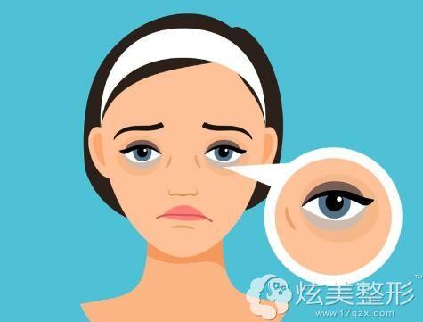 黑眼圈出现影响颜值,不精神
