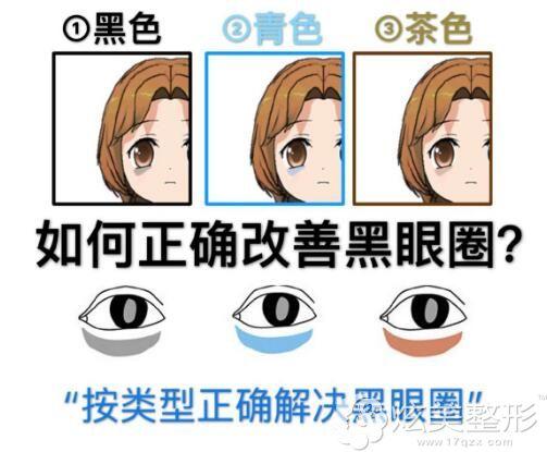 黑眼圈常见的三种类型