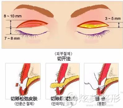内双做切开双眼皮需要去皮去脂