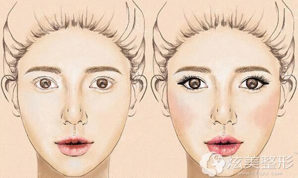 双眼特别圆,开眼角可增加眼睛水平长度