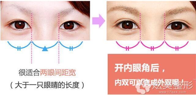 两只眼睛间距过宽,可通过开内眼角来拉长眼睛长度