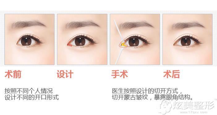 开内眼角的手术操作过程