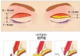 内双做去皮去脂的双眼皮还需要开内眼角吗