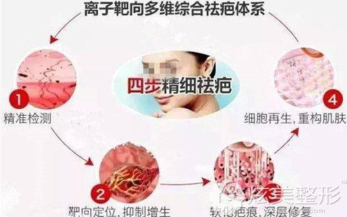 激光去除耳后疤痕增生过程