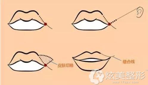 嘴角提升上扬手术过程