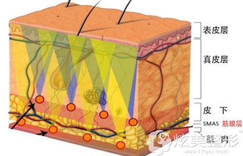 悬吊除皱术能从皮肤筋膜层改善