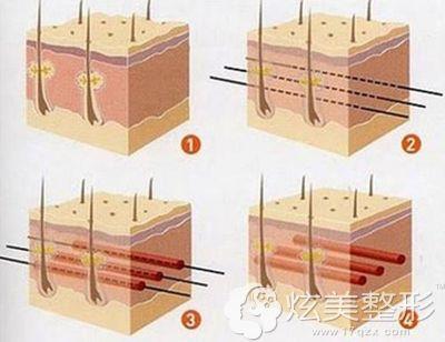 埋线提升的手术原理图