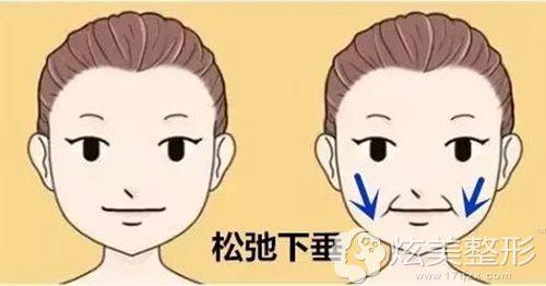 皮肤出现了松弛下垂的现象