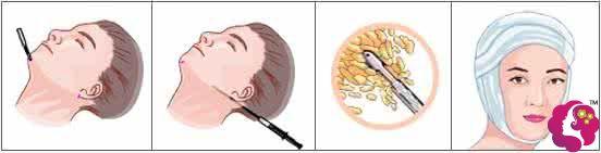 双下巴吸脂手术