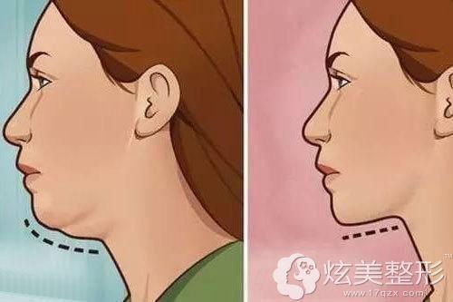 双下巴吸脂术前后对比