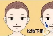 纠结埋线提升or筋膜悬吊除皱术区别,45岁更建议选....