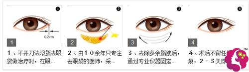 热效溶脂去眼袋的治疗原理图