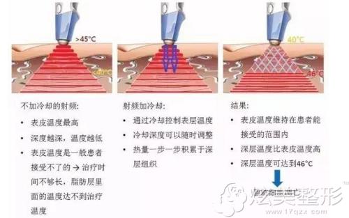 射频溶脂去眼袋的治疗原理图