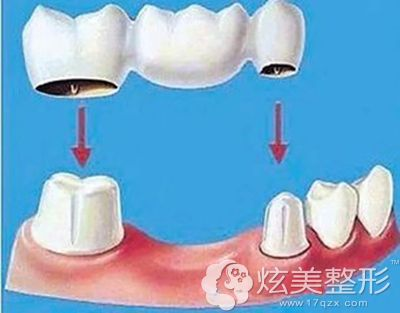 钛合金烤瓷牙手术时需要磨牙