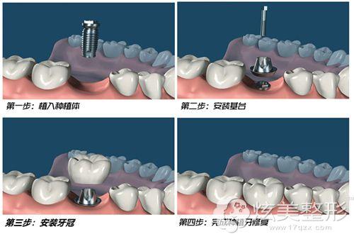 即刻种植牙的手术原理图