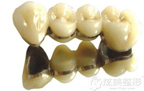 钛合金烤瓷牙雕刻后的样子